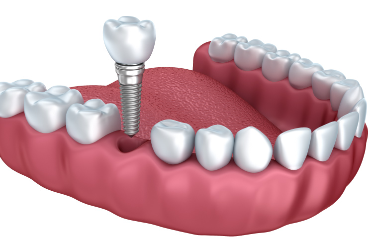 Rendering of a dental implant surgically implanted into the gums