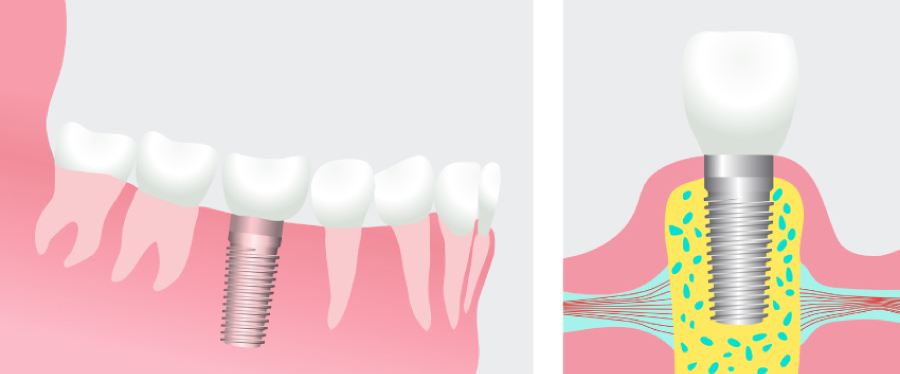 Illustration of a dental implant topped with a dental crown.