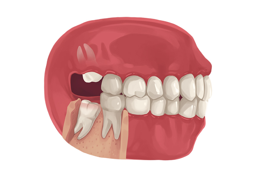 Model showing wisdom teeth growing in at odd angles.