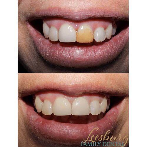 Before and after tooth repair